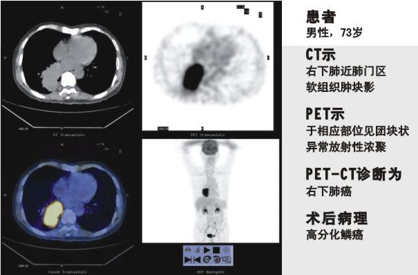 PET-CT的独特功能