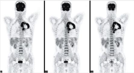 PET-CT检查的价值与局限性