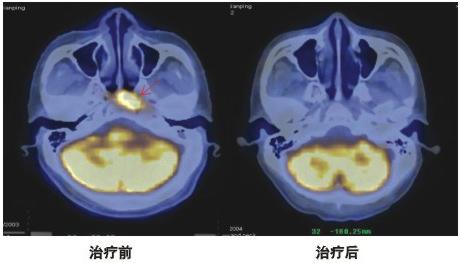 PET-CT对临床肿瘤决策的影响
