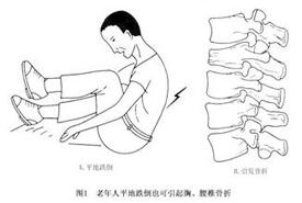 老年人腰痛当心腰椎骨折