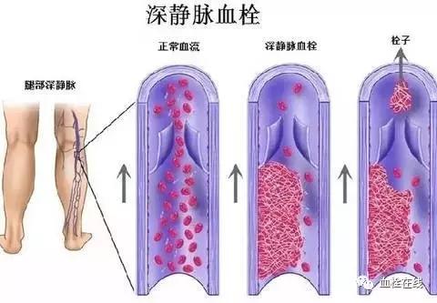 【科普】腿肿,警惕下肢深静脉血栓形成!